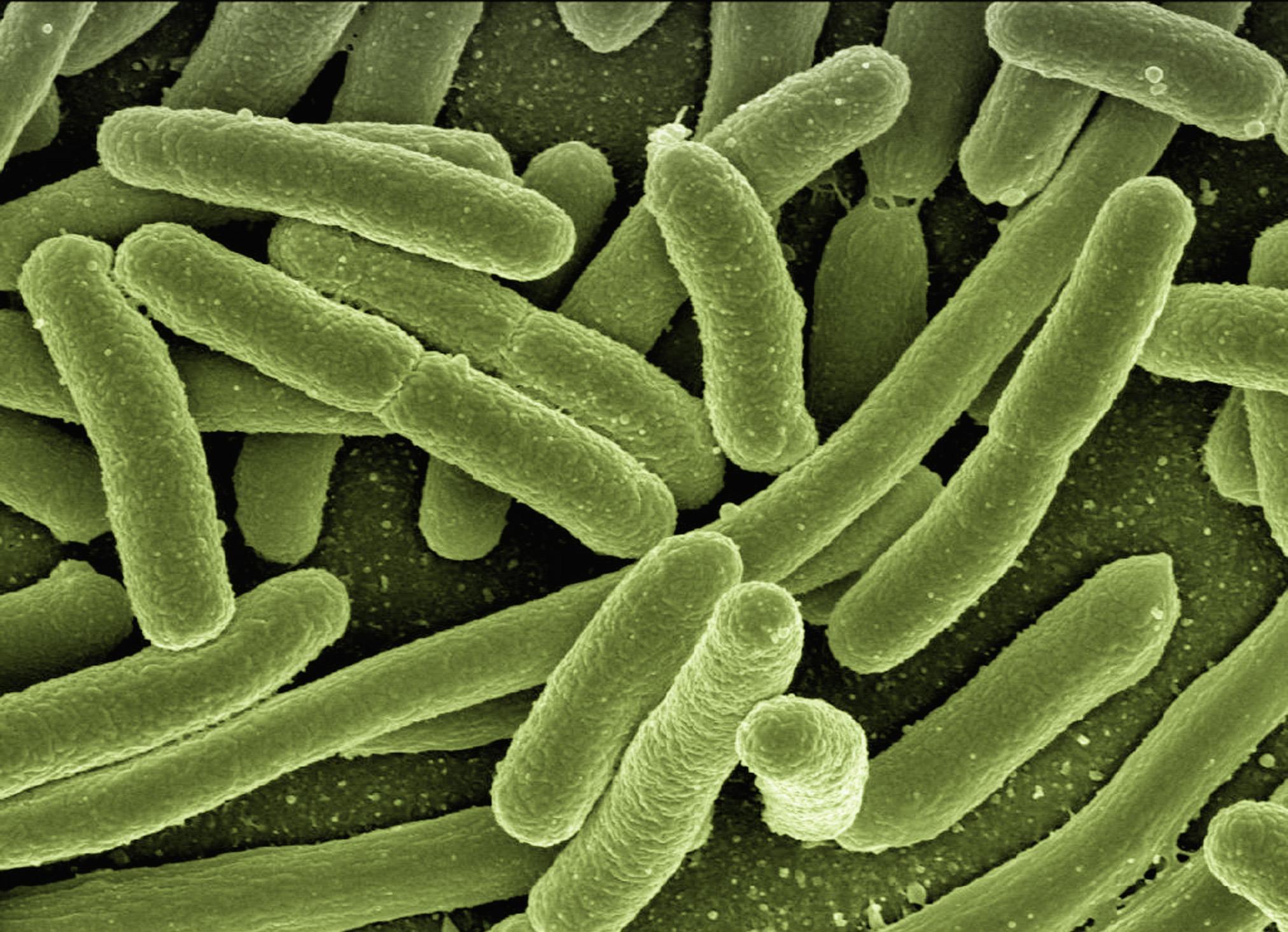 koli-bacteria-123081.jpg